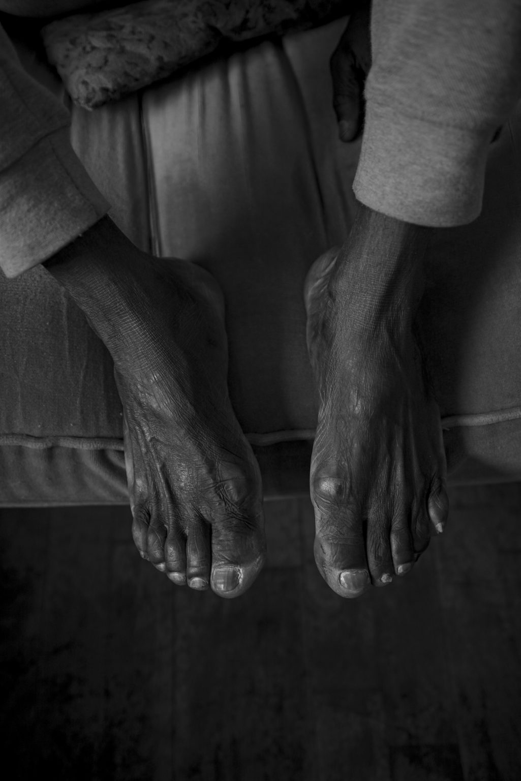 The battered feet of those who arrive after traveling thousands of miles on foot. But also swollen from torture in Libyan prisons. Reggio Emilia, Italy, 2019