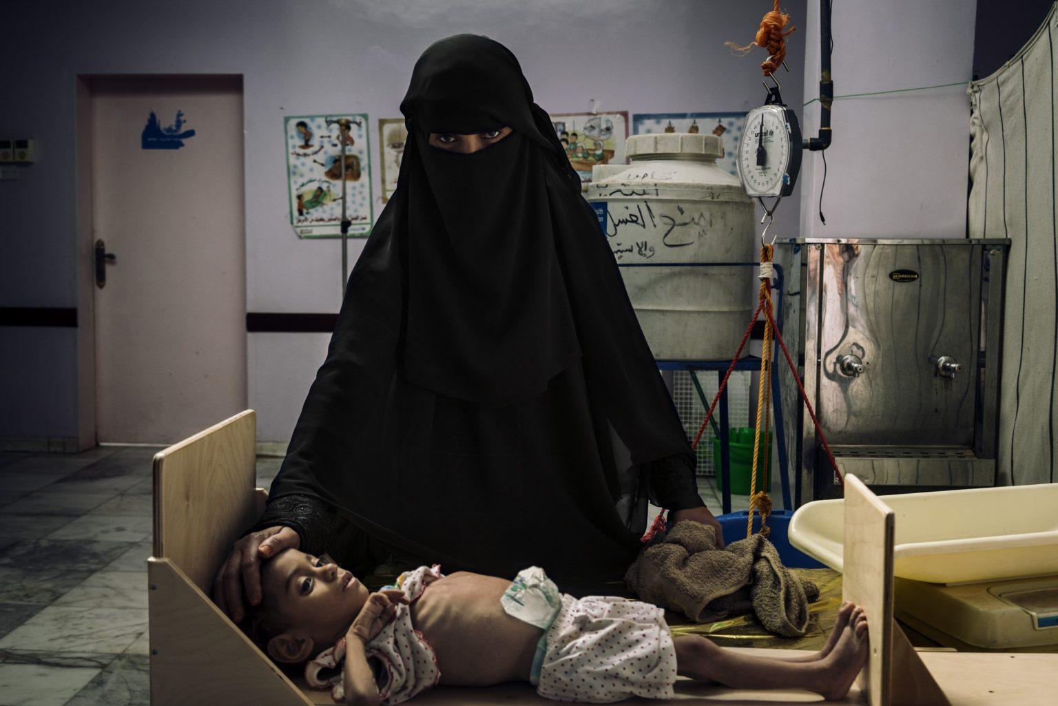 *** SPECIAL   FEE   APPLIES ***Aslam, Yemen, December 8th, 2018 - Fatima Ahmed stands near her daughter Nada while she undergoes the procedure to be admitted in at the clinic in Aslam. The young Nada is 5 years old and severely malnourished. >< Aslam, Yemen, 8 dicembre 2018 -  Fatima Ahmed rassicura la figlia Nada mentre è sottoposta alla procedura per essere ammessa nella clinica di Aslam. La giovane Nada ha 5 anni e è gravemente malnutrita *** Local Caption *** 01362929