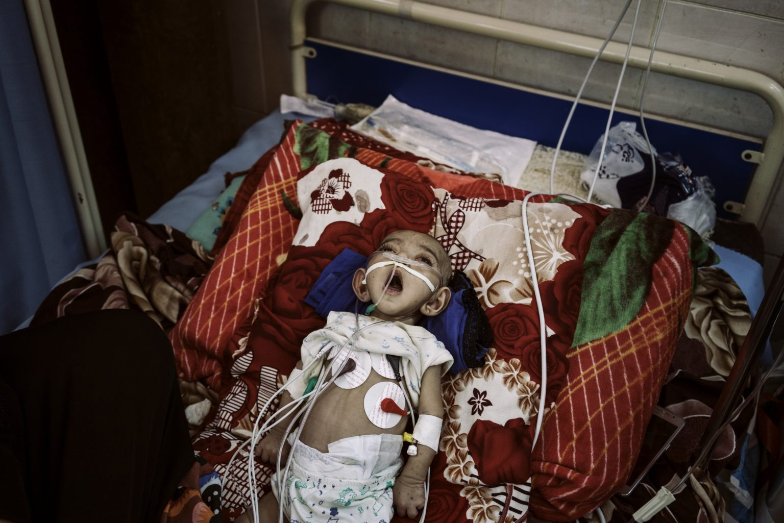 *** SPECIAL   FEE   APPLIES ***Aden (Yemen), May 2018 - Taif Fares gasps for air in the Intensive Care Unit of  the al-Sadaqa Hospital. She was born with a heart disorder requiring constant care. There are no doctors in the hospital and availability of oxygen and medicines has been discontinuous. Taif died few days after this photo was taken.  A violent confrontation between a member of the militia that control al-Sadaqa hospital and a doctor on May 14th led to a strike of all the doctors in the hospital. They demand the militia to leave the hospital. The strike created a dangerous situation for many of the patients. Children in the Intensive Care Unit and in the malnutrition wards couldn't see a doctor for days. ><  Aden (Yemen), Maggio 2018 - Taif Fares boccheggia in cerca d'aria nell'unità di terapia intensiva dell'ospedale al-Sadaqa. È nata con un disturbo cardiaco che richiede cure costanti. Non ci sono medici nell'ospedale e la disponibilità di ossigeno e medicinali è stata discontinua. Taif morì pochi giorni dopo che questa foto fu scattata. Un violento scontro tra un membro della milizia che controllava l'ospedale di al-Sadaqa e un medico il 14 maggio ha portato allo sciopero di tutti i medici dell'ospedale , i quali chiedono alla milizia di lasciare l'ospedale. Lo sciopero ha creato una situazione pericolosa per molti dei pazienti. I bambini nell'unità di terapia intensiva e nei reparti di malnutrizione non hanno potuto vedere un medico per giorni.