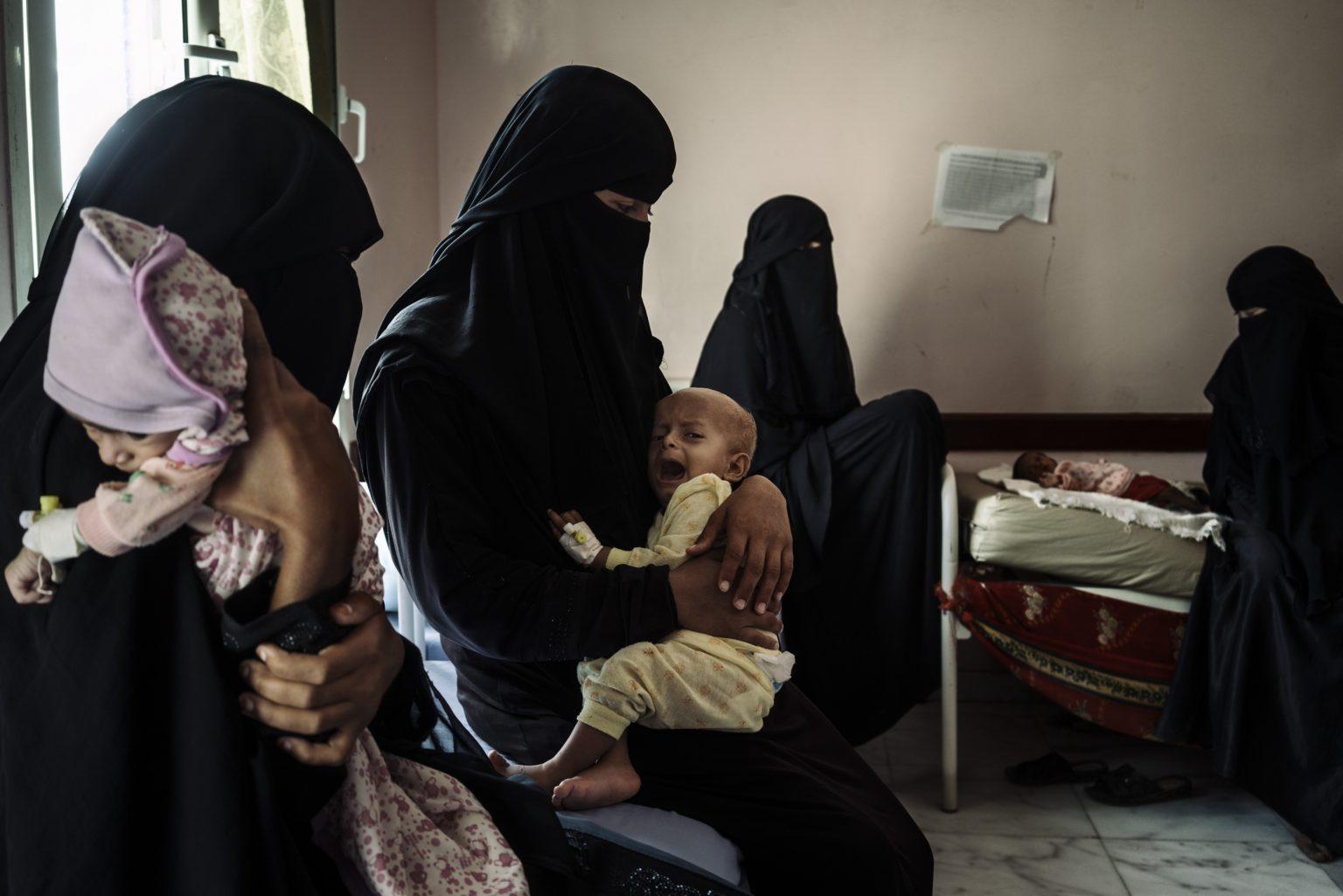 *** SPECIAL   FEE   APPLIES ***Aslam, Yemen, December 8th, 2018 - The clinic in Aslam is overcrowded with malnourished children. Mothers and children share beds, and, sometimes mattresses are added to the floor to accomodate all the patients. >< Aslam, Yemen, 8 dicembre 2018 - La clinica di Aslam è sovraffollata di bambini malnutriti. Madri e figli condividono il letto e, a volte, dei materassi vengono aggiunti sul pavimento per accogliere tutti i pazienti.