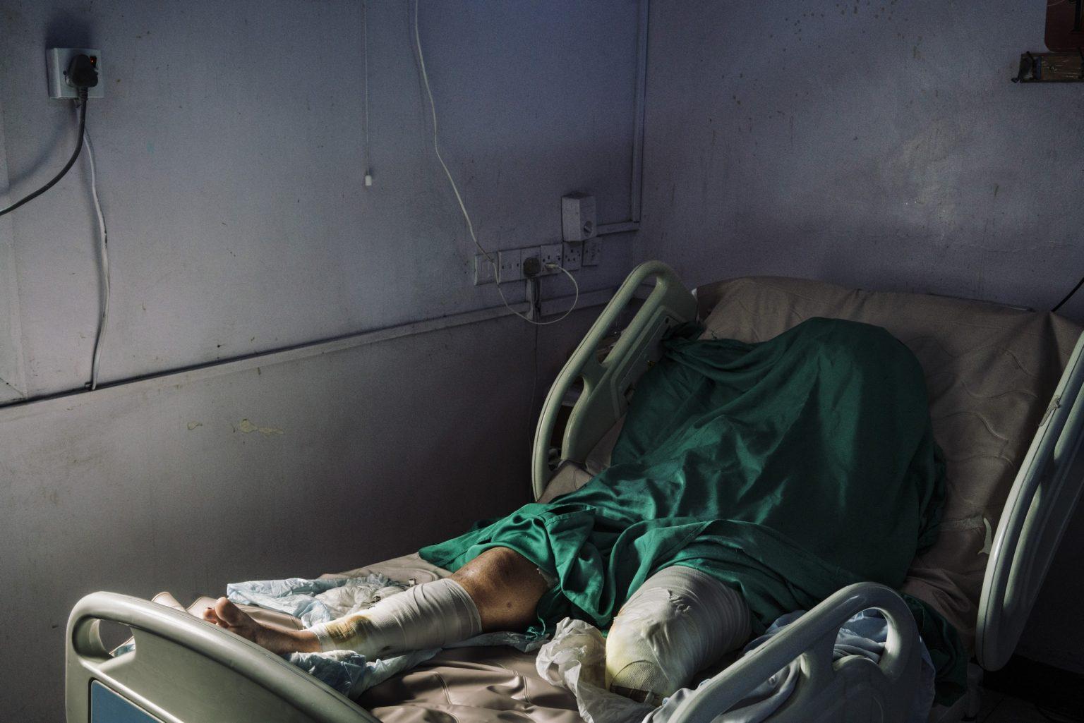 *** SPECIAL   FEE   APPLIES ***Hodeida, Yemen, December 2018 - Wafa Ahmed Hathim, 25, lost her left leg when a mortar landed on her house in the Rabasa neighborhood, just a mile from the front line. Her nephew and sister died and seven family members were injured. The attack took place on December 8th, while the two warring parties where negotiating peace in Sweden. Wafa has just finished her studies to become a nurse. Her father Ahmed Hatem spent most of his money to help her attend university. Now she is worried she will not be able to find a job. >< Hodeida, Yemen, dicembre 2018 - Wafa Ahmed Hathim, 25, ha perso la gamba sinistra durante un attacco di colpi di mortaio che ha distrutto la sua casa nel quartiere Rabasa, che dista solamente un miglio dalla front-line. Sua nipote e la sorella sono morte e sette membri della sua famiglia sono stati feriti. L'attacco è avvenuto l'8 dicembre, mentre le due fazioni stavano negoziando per la pace in Svezia. Wafa ha appena finito di studiare per diventare infermiera. Il padre Ahmed Hatem ha speso gran parte dei suoi soldi per aiutarla a finire l'università. Ora la ragazza teme che non riuscirà  a trovare lavoro.