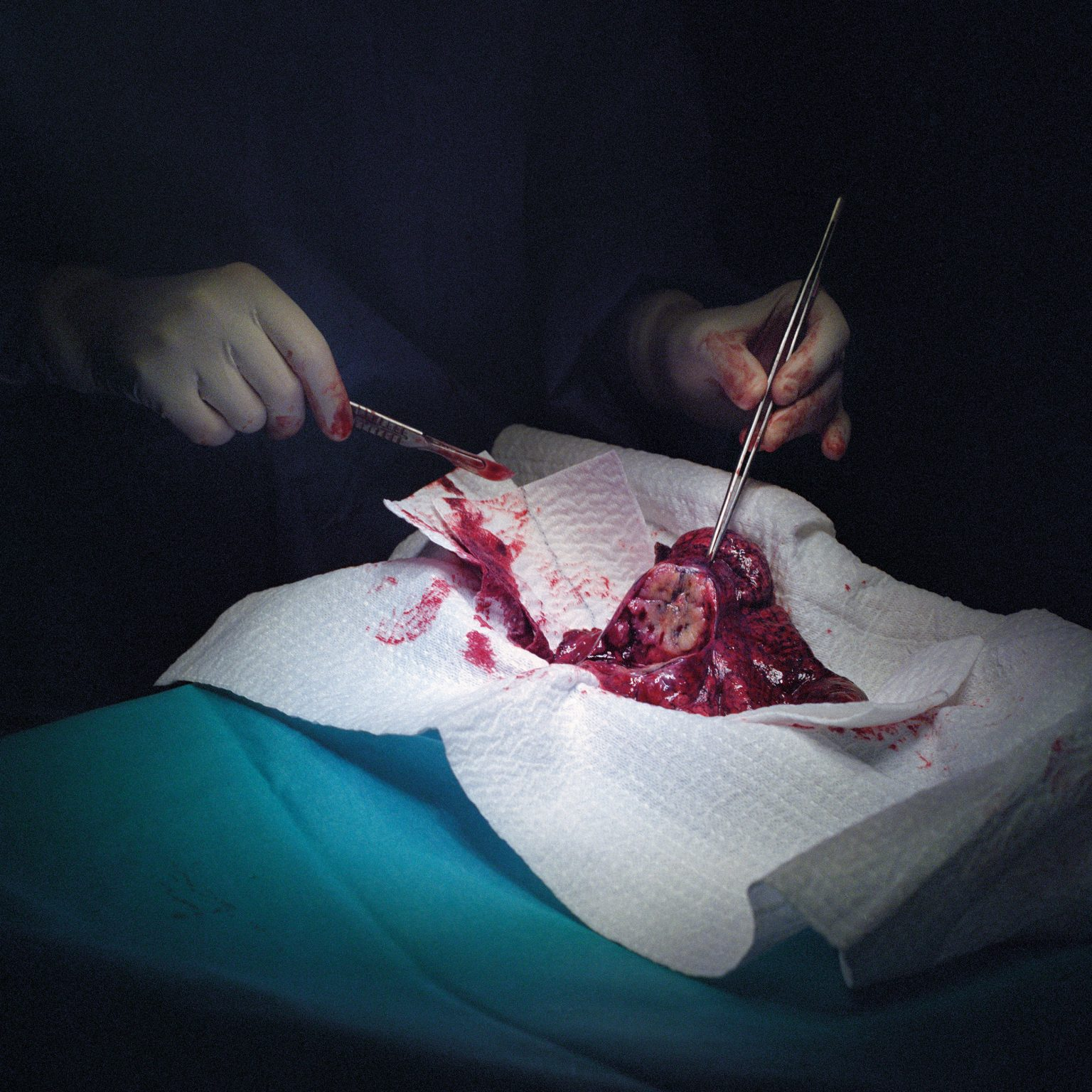Milan, Italy. Surgeon Giulia Veronesi dissecting a lung cancer after performing a 4 hours long surgery on a male smoker at the European Institute of Oncology. Survival rates for lung cancer remain very low.