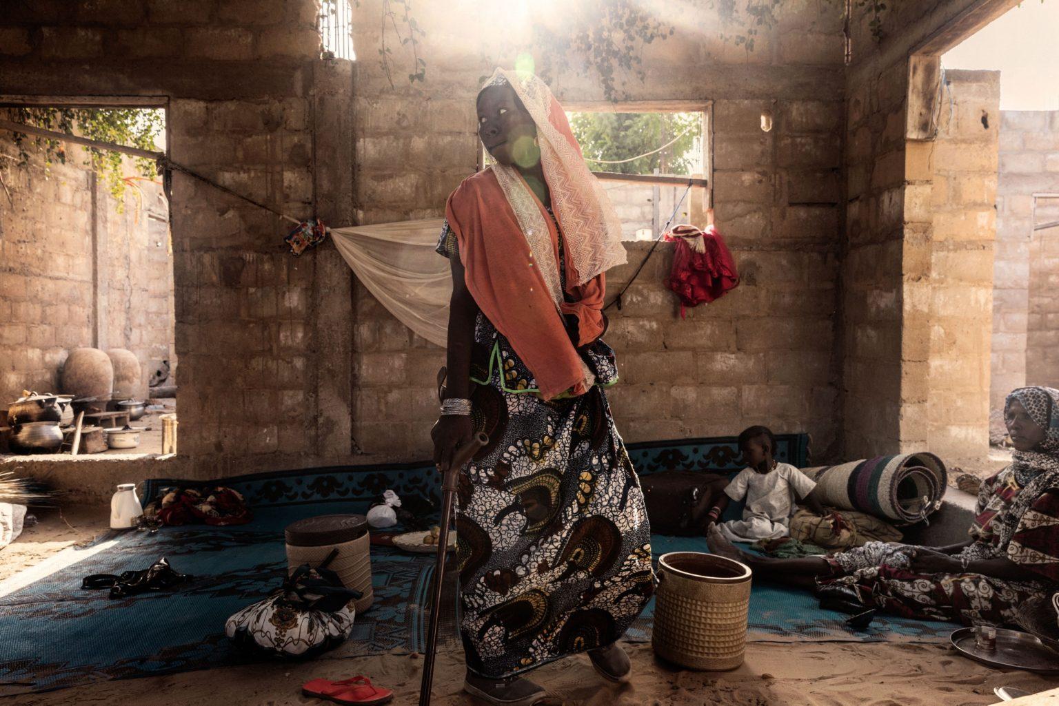 Africa, Chad, Gomirom Domouli, October 2018 - Halima Adama, a former member of Boko Haram terrorist group. Halima is a kamikaze who survived a suicide attack she carried out herself. This young woman, now aged 20, was forced into carrying out this suicide mission at the age of just 18. She did not die in the explosion, but she lost both of her legs, and has now returned to live with her family in the village of Gomirom Domouli. >< Africa, Ciad, Gomirom Domouli, Ottobre 2018 - Halima Adama, una ex membra del gruppo terroristico Boko Haram. Halima è una kamikaze che è sopravvissuta all?attacco suicida compiuto da lei stessa. Questa giovane donna, che ora ha 20 anni, è stata costretta a compiere questa missione suicida all?età di 18 anni. Non è morta nell?esplosione ma ha perso entrambe le gambe ed è tornata ora a vivere con la sua famiglia nel villaggio di Gomirom Domouli. *** SPECIAL   FEE   APPLIES *** *** Local Caption *** 01362924