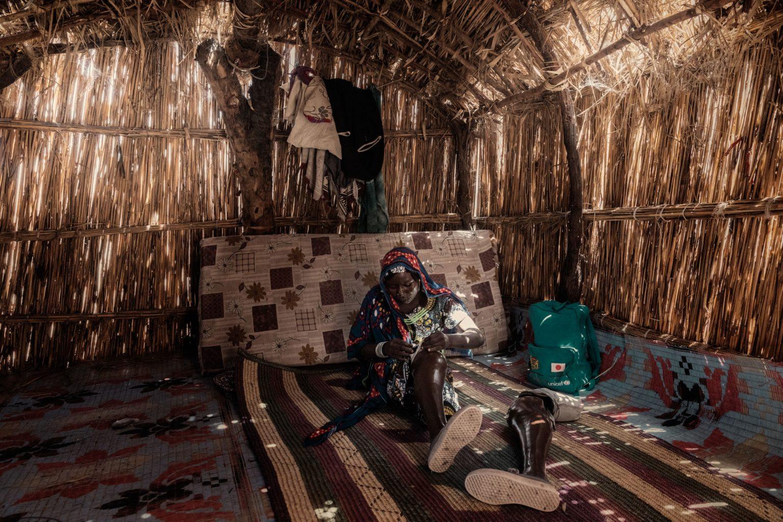 Africa, Chad, Gomirom Domouli, October 2018 - Halima Adama, a former member of Boko Haram terrorist group. Halima is a kamikaze who survived a suicide attack she carried out herself. This young woman, now aged 20, was forced into carrying out this suicide mission at the age of just 18. She did not die in the explosion, but she lost both of her legs, and has now returned to live with her family in the village of Gomirom Domouli. >< Africa, Ciad, Gomirom Domouli, Ottobre 2018 - Halima Adama, una ex membra del gruppo terroristico Boko Haram. Halima è una kamikaze che è sopravvissuta all?attacco suicida compiuto da lei stessa. Questa giovane donna, che ora ha 20 anni, è stata costretta a compiere questa missione suicida all?età di 18 anni. Non è morta nell?esplosione ma ha perso entrambe le gambe ed è tornata ora a vivere con la sua famiglia nel villaggio di Gomirom Domouli. *** SPECIAL   FEE   APPLIES *** *** Local Caption *** 01362923