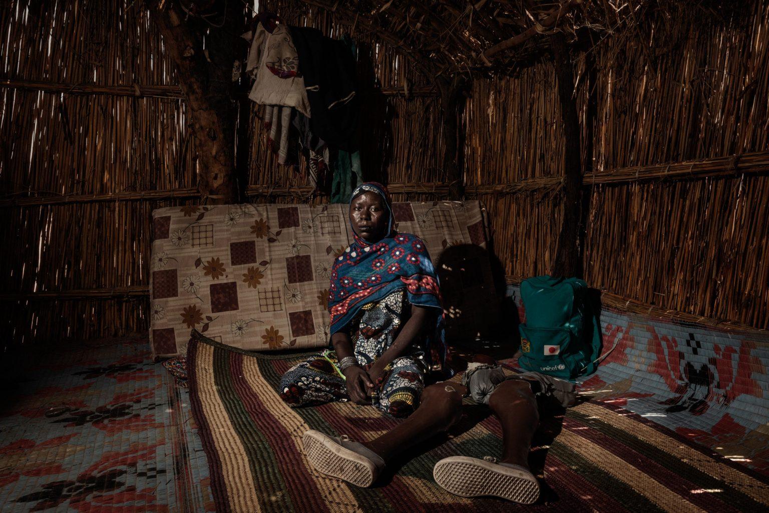 Africa, Chad, Gomirom Domouli, October 2018 - Halima Adama, a former member of Boko Haram terrorist group. Halima is a kamikaze who survived a suicide attack she carried out herself. This young woman, now aged 20, was forced into carrying out this suicide mission at the age of just 18. She did not die in the explosion, but she lost both of her legs, and has now returned to live with her family in the village of Gomirom Domouli. >< Africa, Ciad, Gomirom Domouli, Ottobre 2018 - Halima Adama, una ex membra del gruppo terroristico Boko Haram. Halima è una kamikaze che è sopravvissuta all?attacco suicida compiuto da lei stessa. Questa giovane donna, che ora ha 20 anni, è stata costretta a compiere questa missione suicida all?età di 18 anni. Non è morta nell?esplosione ma ha perso entrambe le gambe ed è tornata ora a vivere con la sua famiglia nel villaggio di Gomirom Domouli.*** SPECIAL   FEE   APPLIES *** *** Local Caption *** 01362922