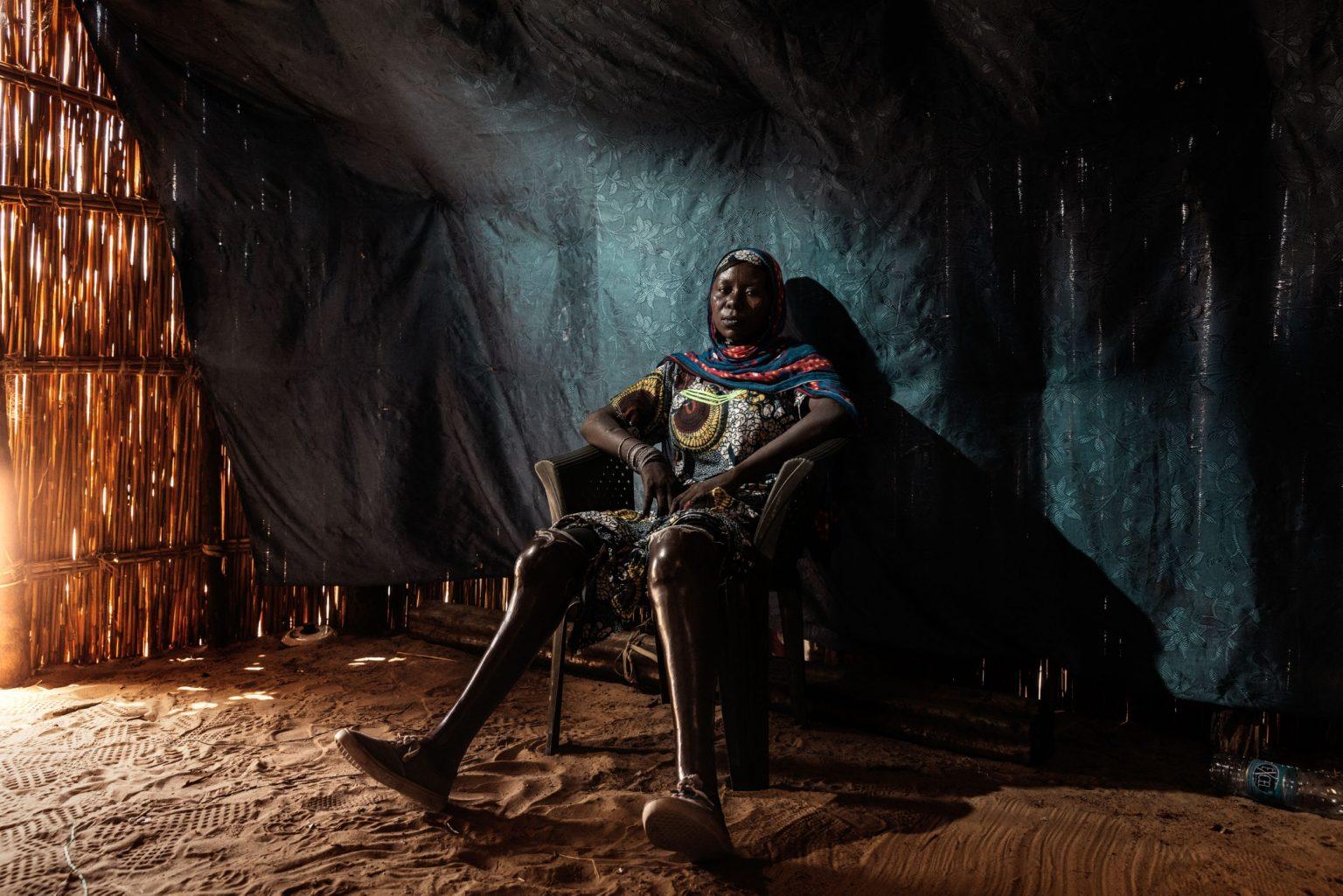 Africa, Chad, Gomirom Domouli, October 2018 - Halima Adama, a former member of Boko Haram terrorist group. Halima is a kamikaze who survived a suicide attack she carried out herself. This young woman, now aged 20, was forced into carrying out this suicide mission at the age of just 18. She did not die in the explosion, but she lost both of her legs, and has now returned to live with her family in the village of Gomirom Domouli. >< Africa, Ciad, Gomirom Domouli, Ottobre 2018 - Halima Adama, una ex membra del gruppo terroristico Boko Haram. Halima è una kamikaze che è sopravvissuta all?attacco suicida compiuto da lei stessa. Questa giovane donna, che ora ha 20 anni, è stata costretta a compiere questa missione suicida all?età di 18 anni. Non è morta nell?esplosione ma ha perso entrambe le gambe ed è tornata ora a vivere con la sua famiglia nel villaggio di Gomirom Domouli. *** SPECIAL   FEE   APPLIES *** *** Local Caption *** 01362921