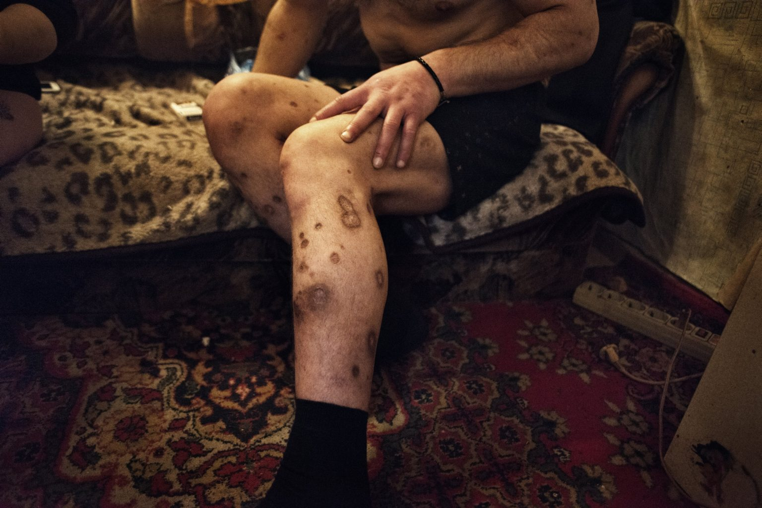 Yekaterinburg, Russia, November 2013 - Elman shows the wounds in the legs caused by the use of Krokodil and methadone. >< Yekaterinburg, Russia, novembre 2013 - Elman mostra le ferite provocate dall'uso di Krokodil e metadone.