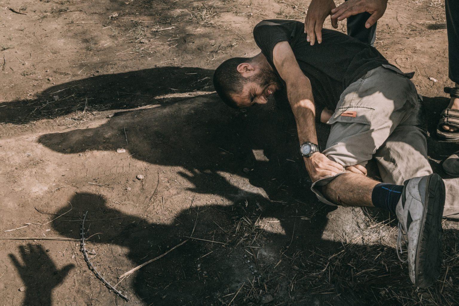 Gaza Strip, May 2018 - A man injured during the protest along the Gaza-Israel border. >< Striscia di Gaza, maggio 2018 - Un manifestante ferito durante le proteste lungo il confine tra Gaza e Israele.