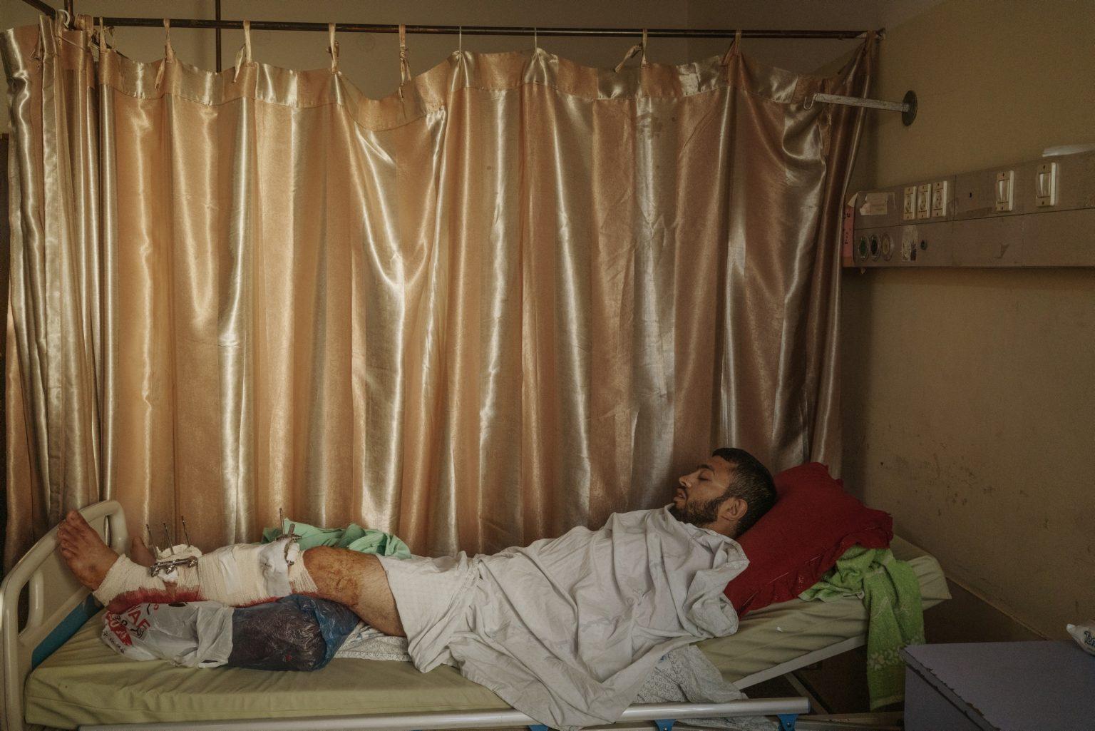 Gaza Strip, May 2018 - Ibrahim Dahir, 32, injured on his leg during the protest by Israeli troops, laying in a bed at Al-Shifa Hospitald in Gaza city. >< Striscia di Gaza, maggio 2018 - Ibrahim Dahir, 32 anni, rimasto ferito a una gamba durante le proteste riposa in un letto dell'osepdale Al-Shifa di Gaza City.